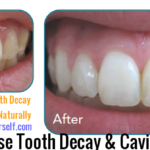 How to Remineralize Teeth, Reverse Tooth Decay Naturally