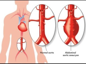 How to prevent ruprured aorta.